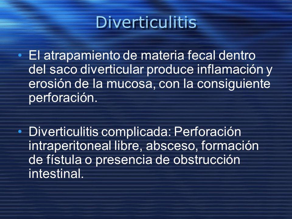 Diverticulitis El atrapamiento de materia fecal dentro del saco diverticular produce inflamación y erosión de la mucosa, con la consiguiente perforaci