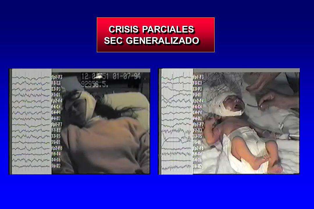CRISIS PARCIALES SEC GENERALIZADO CRISIS PARCIALES SEC GENERALIZADO