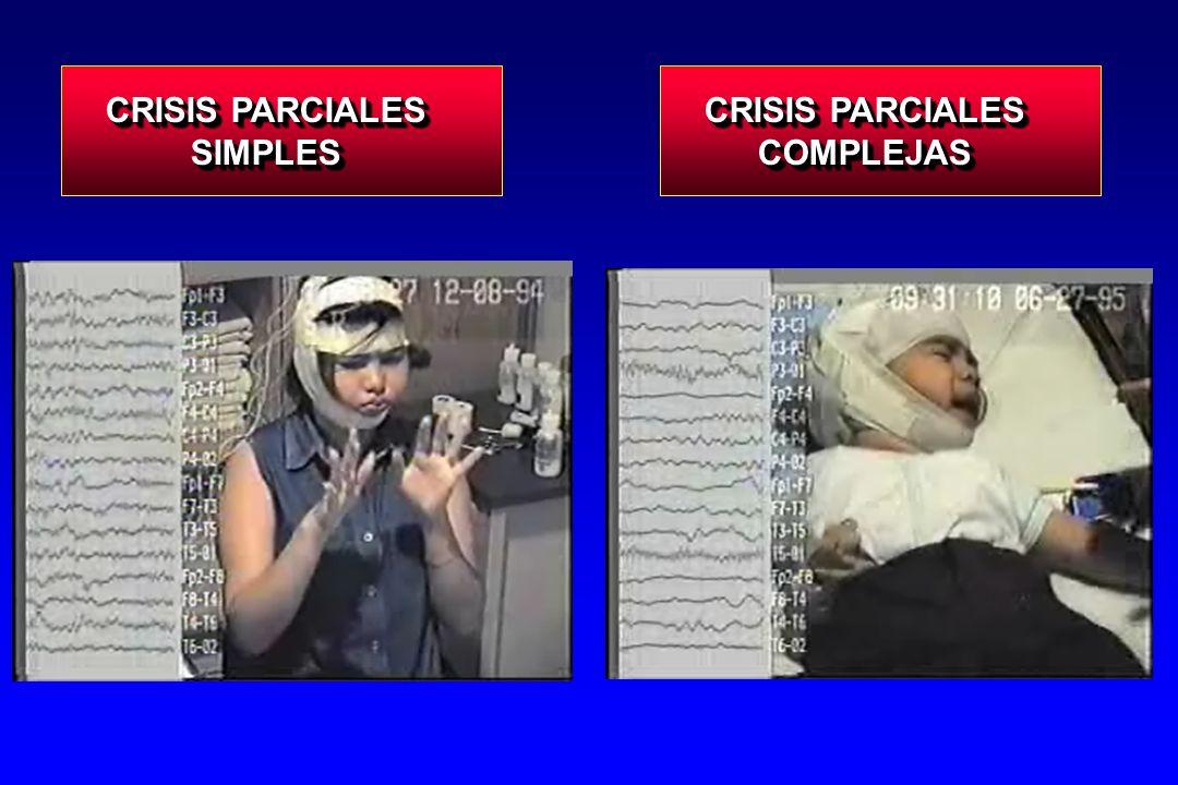 Crisis Parciales Hospital Infantil de México Crisis Parciales Hospital Infantil de México Crisis Parciales : 893 casos (62.8 %) Parcial Generalizada Simples37 - Motoras29.3 - Sensoriales 3.0 - Autonómicas 3.6 - Psíquicas 1.0 Complejas 9.8 - CPS->complejas 6.9 - CPC de inicio 2.1 CP sec Generalizadas16.5 Simples37 - Motoras29.3 - Sensoriales 3.0 - Autonómicas 3.6 - Psíquicas 1.0 Complejas 9.8 - CPS->complejas 6.9 - CPC de inicio 2.1 CP sec Generalizadas16.5 %
