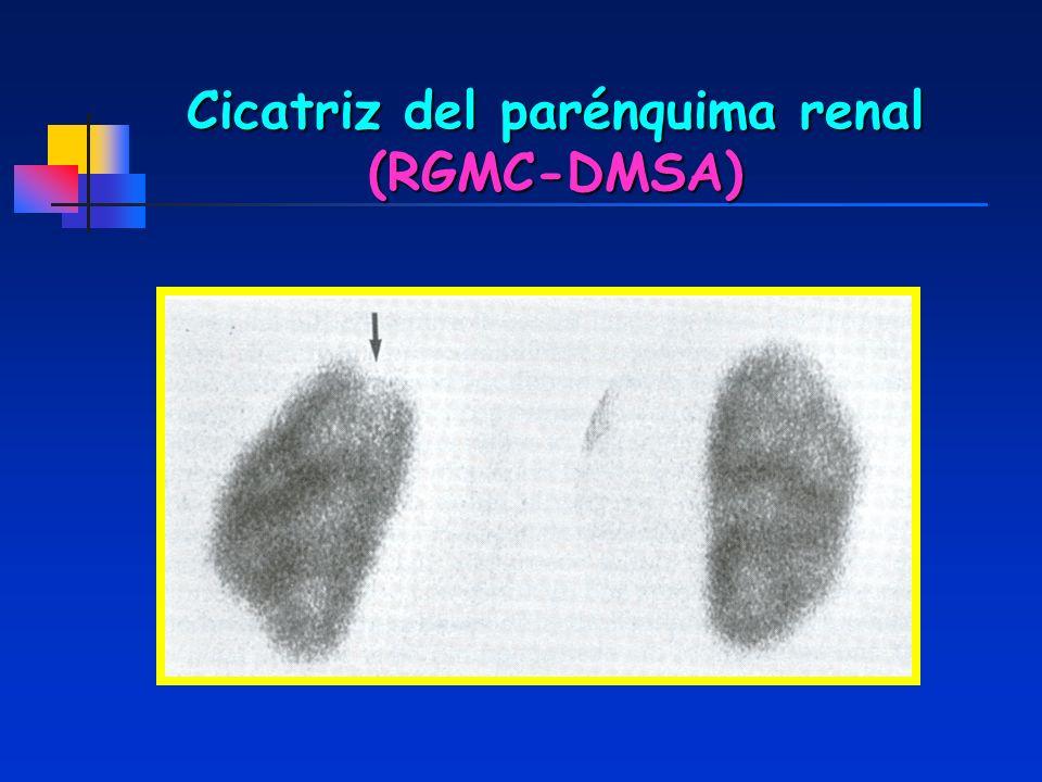 Cicatriz del parénquima renal (RGMC-DMSA)