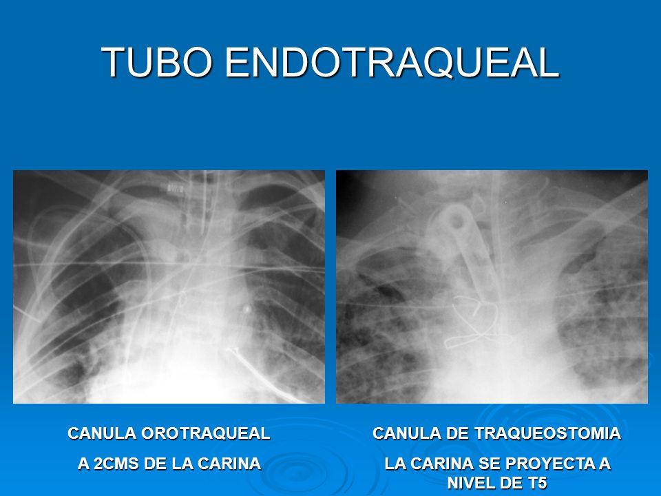 TUBO ENDOTRAQUEAL CANULA OROTRAQUEAL A 2CMS DE LA CARINA CANULA DE TRAQUEOSTOMIA LA CARINA SE PROYECTA A NIVEL DE T5