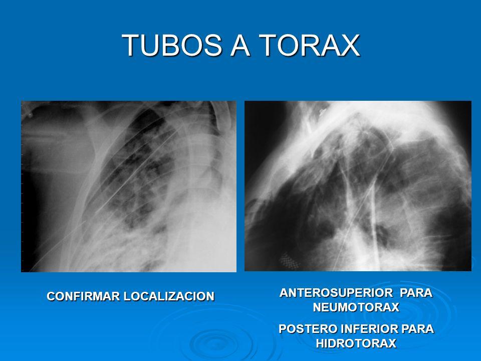 TUBOS A TORAX CONFIRMAR LOCALIZACION ANTEROSUPERIOR PARA NEUMOTORAX POSTERO INFERIOR PARA HIDROTORAX