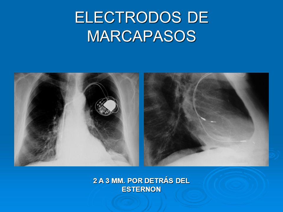 ELECTRODOS DE MARCAPASOS 2 A 3 MM. POR DETRÁS DEL ESTERNON