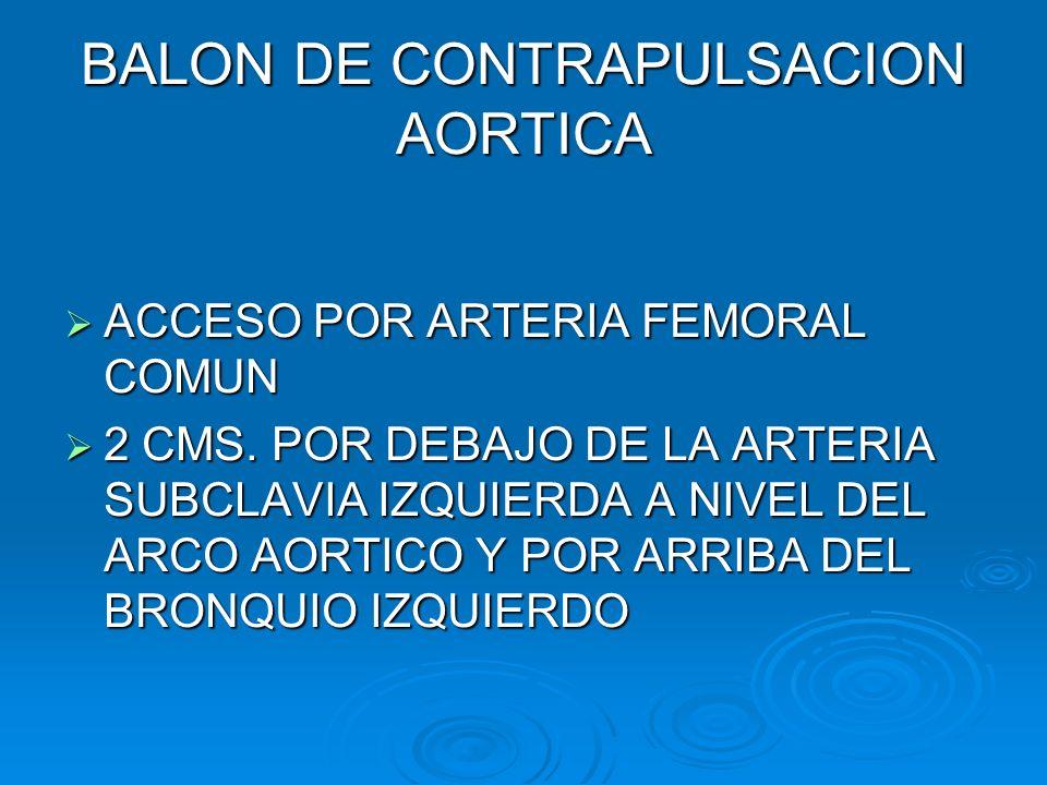 BALON DE CONTRAPULSACION AORTICA ACCESO POR ARTERIA FEMORAL COMUN ACCESO POR ARTERIA FEMORAL COMUN 2 CMS. POR DEBAJO DE LA ARTERIA SUBCLAVIA IZQUIERDA