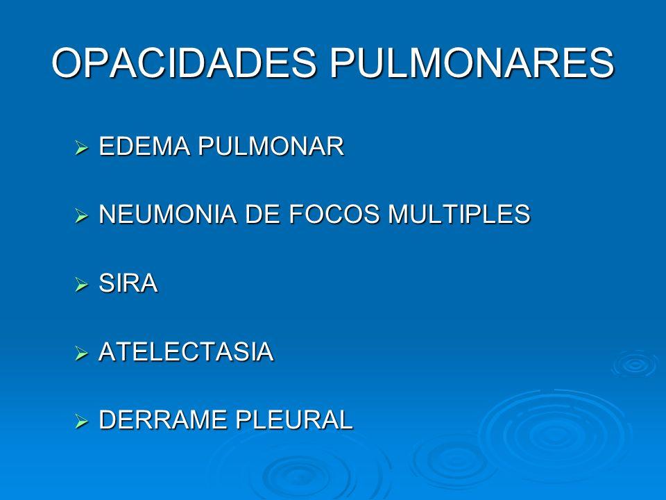 OPACIDADES PULMONARES EDEMA PULMONAR EDEMA PULMONAR NEUMONIA DE FOCOS MULTIPLES NEUMONIA DE FOCOS MULTIPLES SIRA SIRA ATELECTASIA ATELECTASIA DERRAME