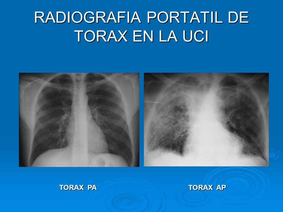 RADIOGRAFIA PORTATIL DE TORAX EN LA UCI TORAX PA TORAX AP