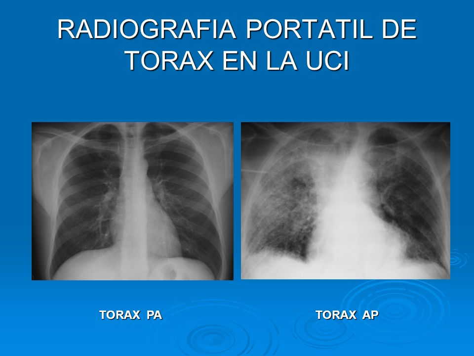 RADIOGRAFIA DE TORAX PROTATIL EN LA UCI 30 A 50 % DEL TOTAL DE RADIOGRAFIAS EN UN HOSPITAL 30 A 50 % DEL TOTAL DE RADIOGRAFIAS EN UN HOSPITAL 35 % DE LOS HALLAZGOS RADIOLOGICOS SON SEGUIDOS DE UNA ACCION MEDICA 35 % DE LOS HALLAZGOS RADIOLOGICOS SON SEGUIDOS DE UNA ACCION MEDICA 15 % MOSTRARON ANORMALIDADES NO SOSPECHADAS 15 % MOSTRARON ANORMALIDADES NO SOSPECHADAS