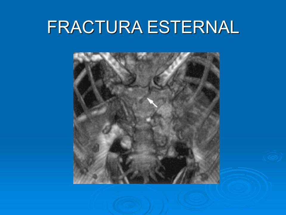 FRACTURA ESTERNAL