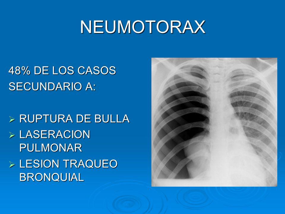 NEUMOTORAX 48% DE LOS CASOS SECUNDARIO A: RUPTURA DE BULLA RUPTURA DE BULLA LASERACION PULMONAR LASERACION PULMONAR LESION TRAQUEO BRONQUIAL LESION TR