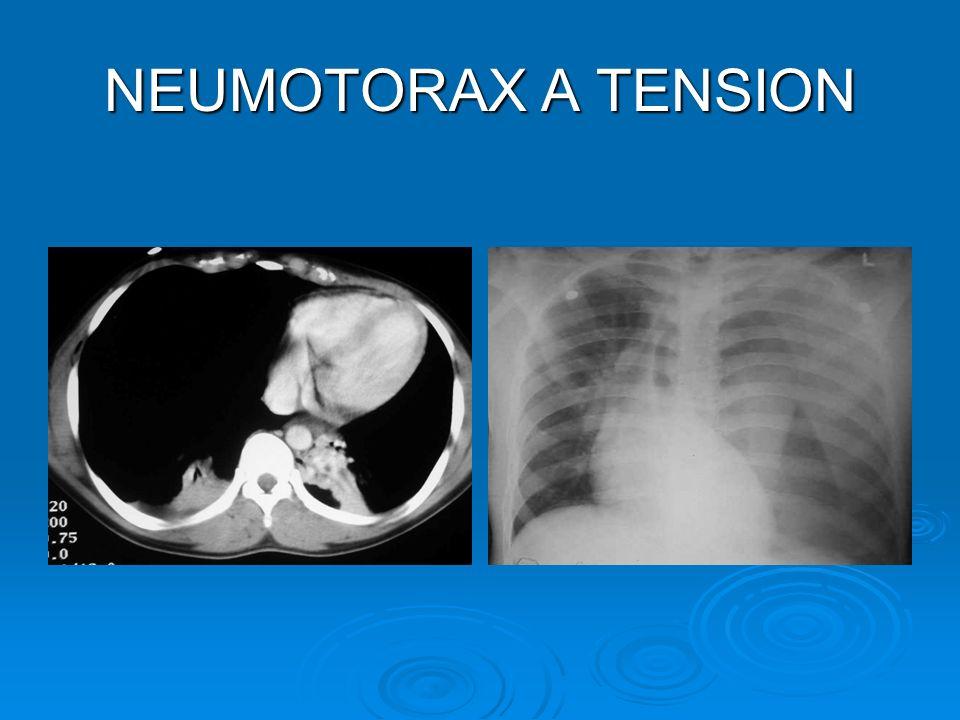 NEUMOTORAX A TENSION