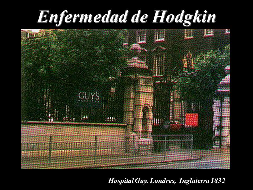 Enfermedad de Hodgkin Hospital Guy. Londres, Inglaterra 1832
