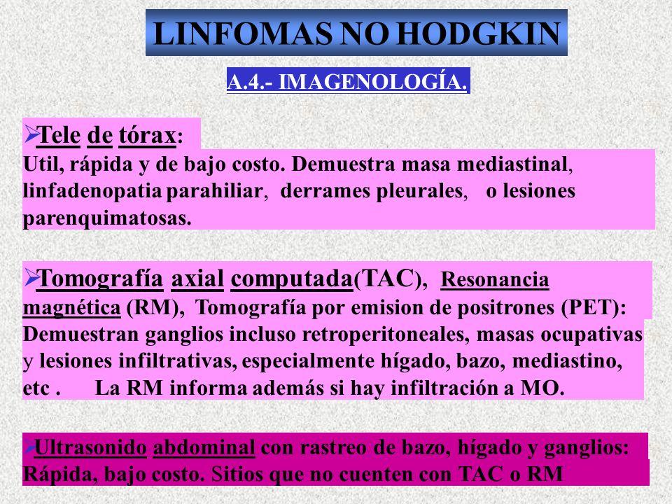 A.4.- IMAGENOLOGÍA. Tele de tórax : Util, rápida y de bajo costo. Demuestra masa mediastinal, linfadenopatia parahiliar, derrames pleurales, o lesione