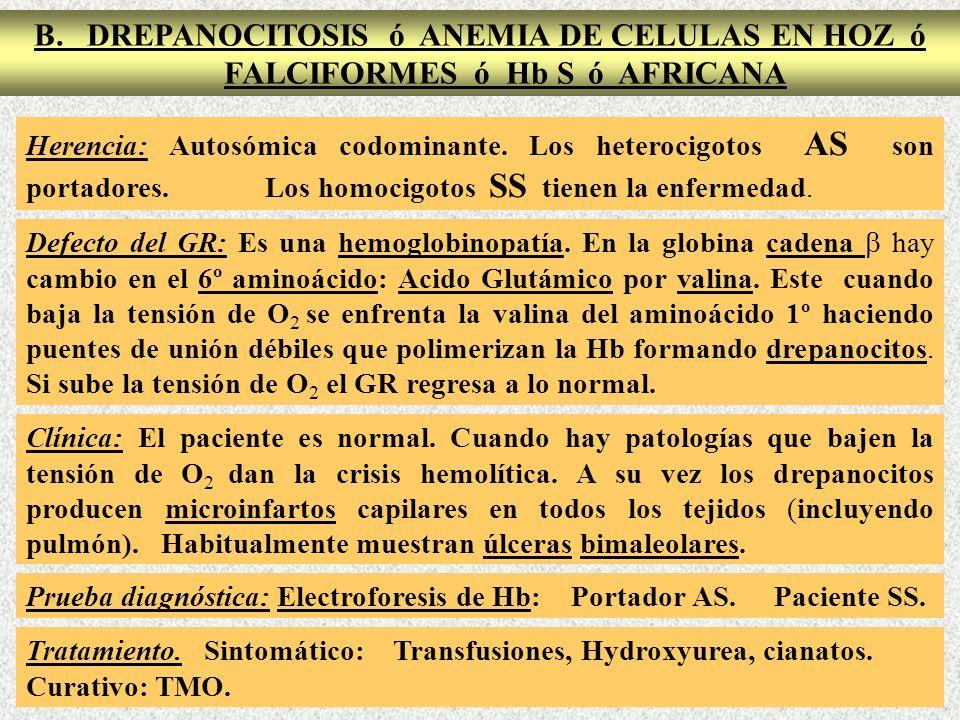 B. DREPANOCITOSIS ó ANEMIA DE CELULAS EN HOZ ó FALCIFORMES ó Hb S ó AFRICANA Herencia: Autosómica codominante. Los heterocigotos AS son portadores. Lo