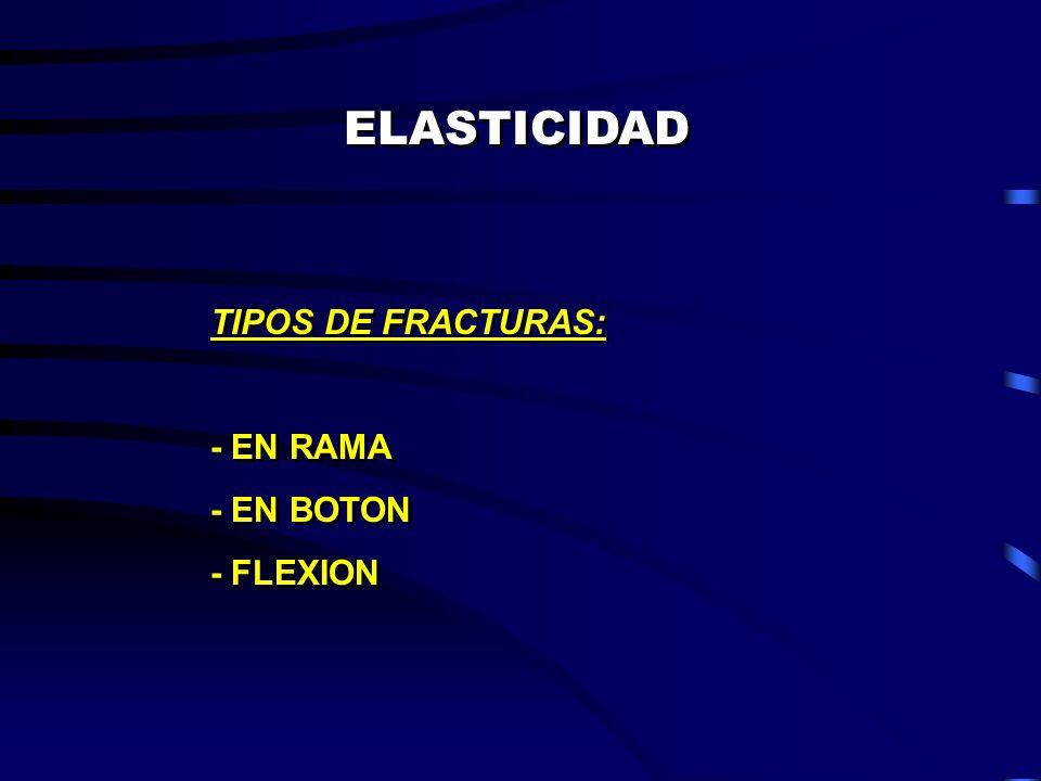ELASTICIDAD TIPOS DE FRACTURAS: - EN RAMA - EN BOTON - FLEXION TIPOS DE FRACTURAS: - EN RAMA - EN BOTON - FLEXION