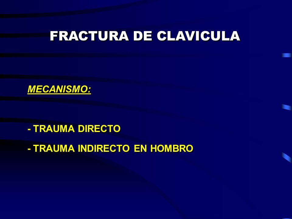 FRACTURA DE CLAVICULA MECANISMO: - TRAUMA DIRECTO - TRAUMA INDIRECTO EN HOMBRO MECANISMO: - TRAUMA DIRECTO - TRAUMA INDIRECTO EN HOMBRO