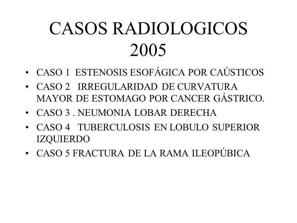 REACTIVOS 1.EL SIGNO RADIOLOGICO MAS FECUENTE DE TUBERCULOSIS ES: a)CONSOLIDACION PULMONAR b)INFILTRADO PULMONAR c)DATOS DE ENFISEMA d)DERRAME PLEURAL e)NO HAY SIGNOS 2.LA NEUMONIA SE MANIFIESTA EN RADIOGRAFIAS DE TORAX COMO: a)PRESENCIA DE DERRAME PLEURAL b)PRESENCIA DE CAVITACIONES c)CONSOLIDACION PULMONAR d)IMAGEN EN VIDRIO DESPULIDO e)LESIONES MILIARES 3.LA CARDIOPATIA REUMATICA EN UNA RADIOGRAFIA DEL TORAX DEMUESTRA QUE EL CORAZON TIENE: a)4 CONTORNOS EN EL PERFIL IZQUIERDO b)4 CONTORNOS EN EL PERFIL DERECHO c)CARDIOMEGALIA EN GARRAFA d)NO DA CAMBIOS e)UNICAMENTE HAY CRECIMIENTO DEL VENTRICULO IZQUIERDO 4.LA ULCERA DUODENAL SE MANIFIESTA EN UNA SERIE GASTRODUODENAL COMO: a)UN DEFECTO DE LLENADO NEGATIVO b)UN DEPOSITO DE BARIO O DEFECTO DE LLENADO POSITIVO c)DILATACION DEL DUODENO d)ESTENOSIS DEL DUODENO e)NO DA SIGNOS