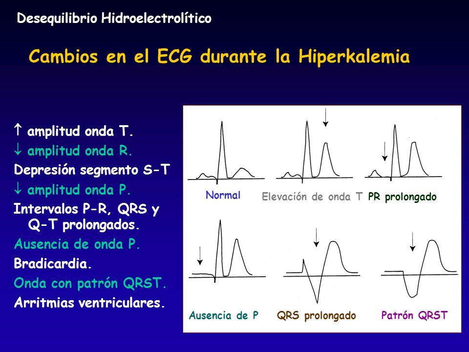 Normal Elevación de onda TPR prolongado Ausencia de PQRS prolongado Patrón QRST Cambios en el ECG durante la Hiperkalemia amplitud onda T. amplitud on