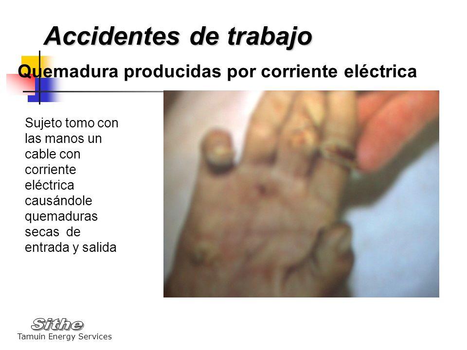 Tamuin Energy Services Quemadura producidas por corriente eléctrica Sujeto tomo con las manos un cable con corriente eléctrica causándole quemaduras s