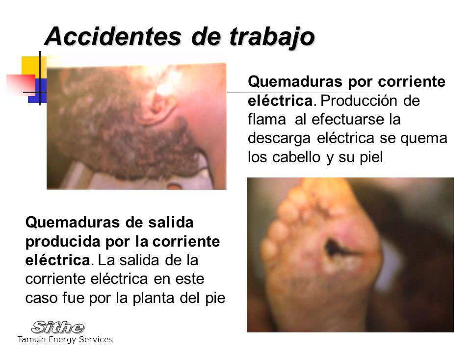Tamuin Energy Services Quemaduras por ácido sulfúrico Los ácidos y los álcalis producen quemaduras o corrosión en los tejidos con los que tienen contacto, falta de uso de protección facial Accidentes de trabajo