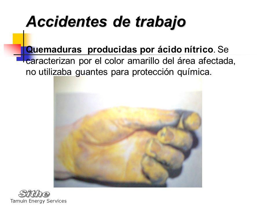 Tamuin Energy Services Quemaduras producidas por ácido nítrico. Se caracterizan por el color amarillo del área afectada, no utilizaba guantes para pro