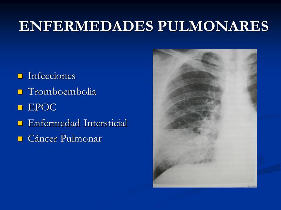 ENFERMEDADES PULMONARES Infecciones Infecciones Tromboembolia Tromboembolia EPOC EPOC Enfermedad Intersticial Enfermedad Intersticial Cáncer Pulmonar