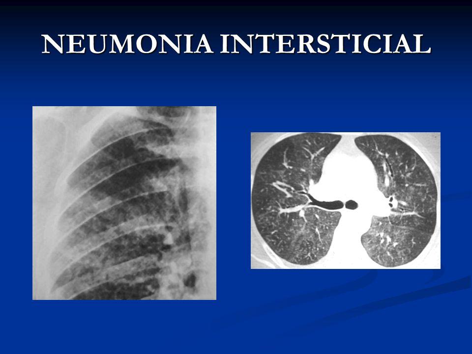 NEUMONIA INTERSTICIAL