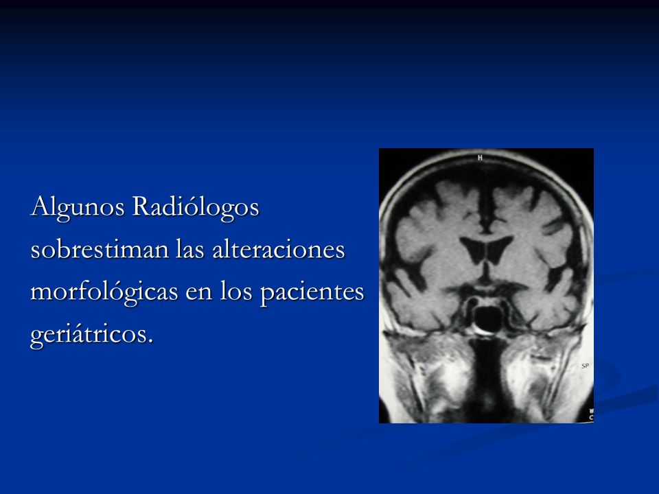 Los estudios radiográficos hacen evidente la forma de vida de estos pacientes.