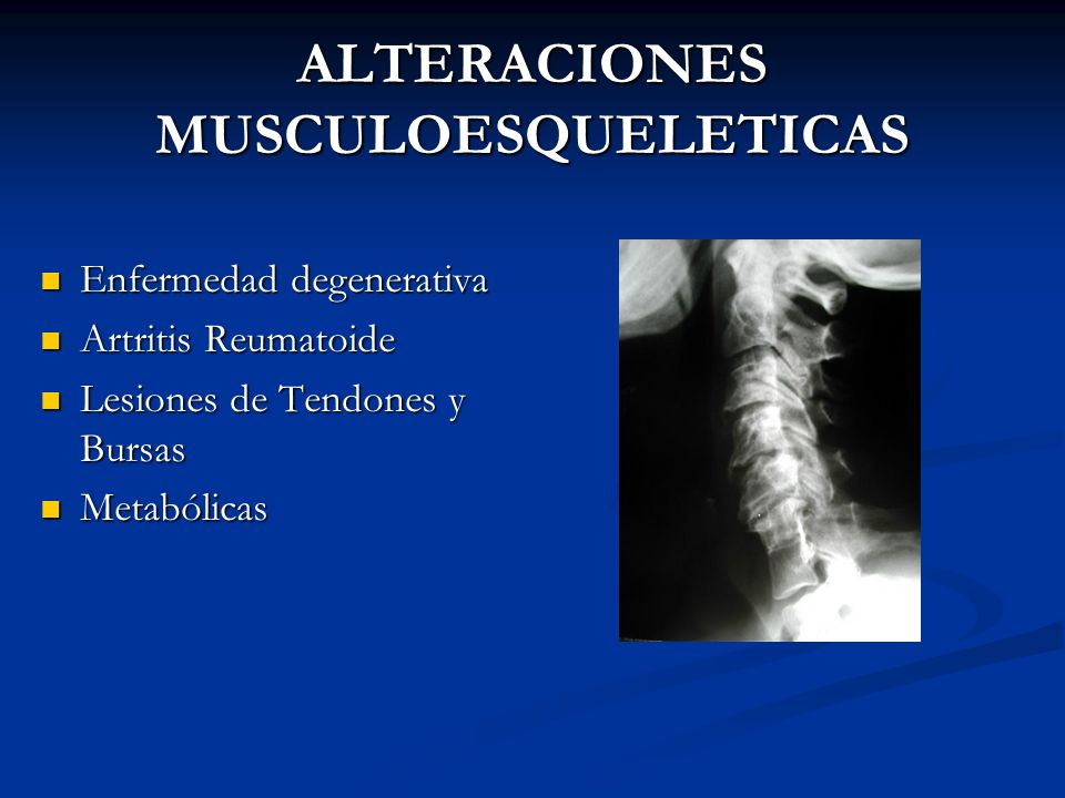 ALTERACIONES MUSCULOESQUELETICAS Enfermedad degenerativa Enfermedad degenerativa Artritis Reumatoide Artritis Reumatoide Lesiones de Tendones y Bursas