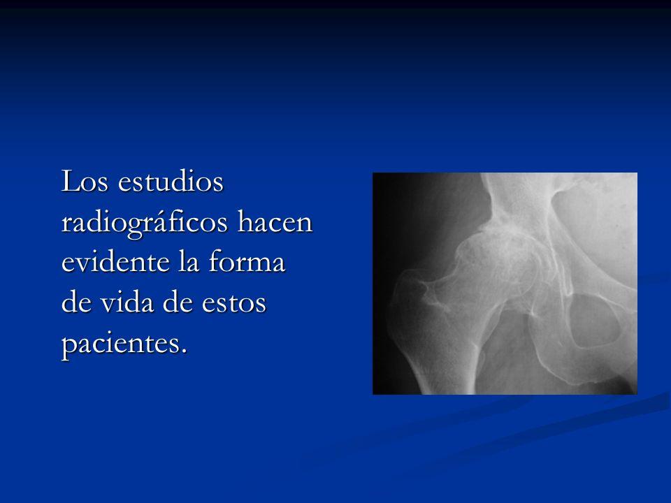 ALTERACIONES MUSCULOESQUELETICAS Enfermedad degenerativa Enfermedad degenerativa Artritis Reumatoide Artritis Reumatoide Lesiones de Tendones y Bursas Lesiones de Tendones y Bursas Metabólicas Metabólicas