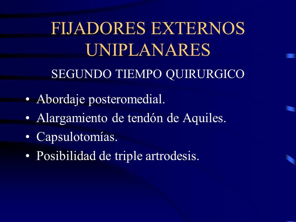 FIJADORES EXTERNOS UNIPLANARES SEGUNDO TIEMPO QUIRURGICO Abordaje posteromedial. Alargamiento de tendón de Aquiles. Capsulotomías. Posibilidad de trip