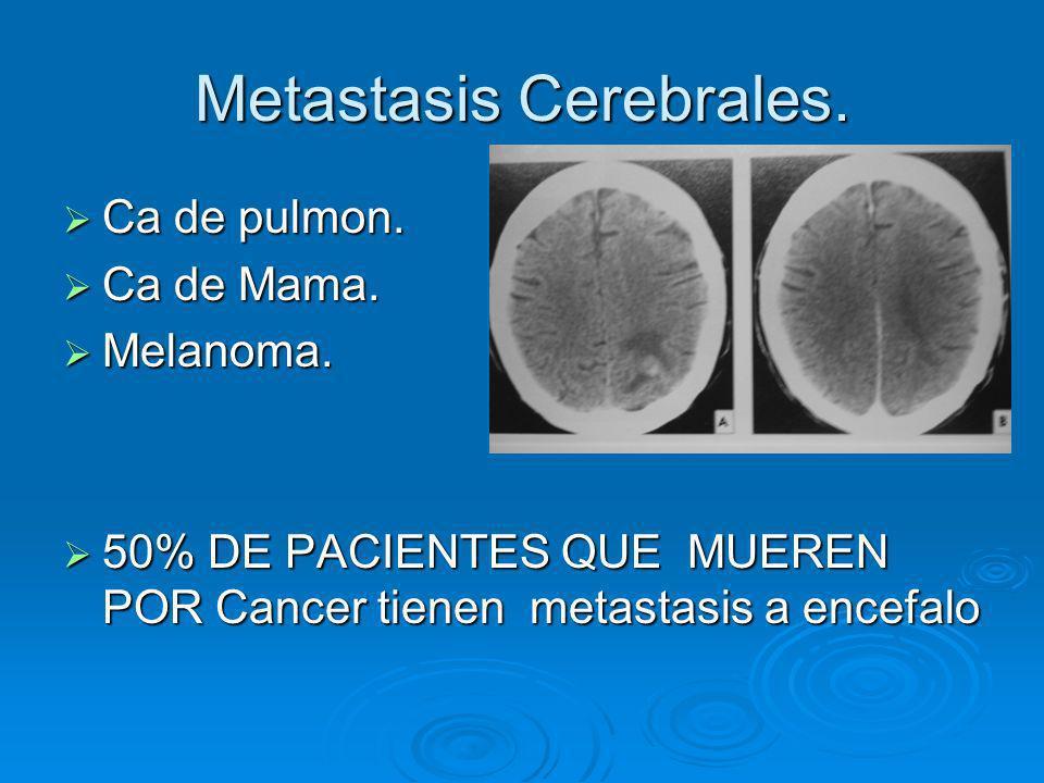 Metastasis Cerebrales. Ca de pulmon. Ca de pulmon. Ca de Mama. Ca de Mama. Melanoma. Melanoma. 50% DE PACIENTES QUE MUEREN POR Cancer tienen metastasi
