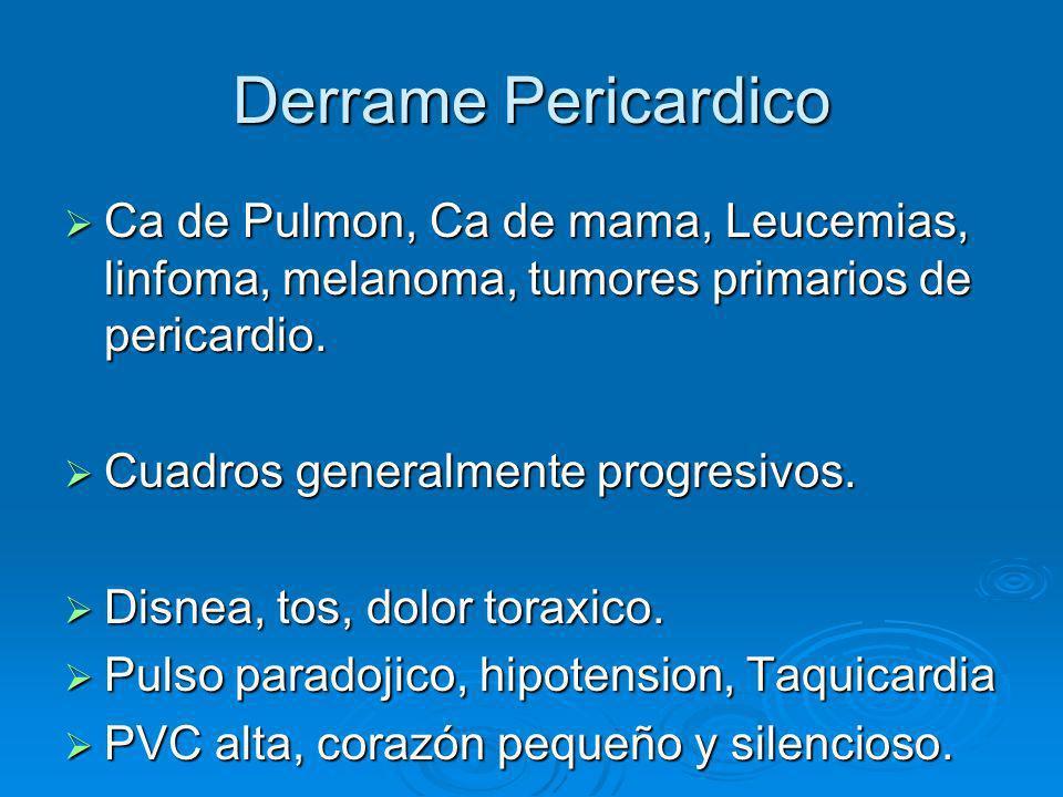 Derrame Pericardico Ca de Pulmon, Ca de mama, Leucemias, linfoma, melanoma, tumores primarios de pericardio. Ca de Pulmon, Ca de mama, Leucemias, linf