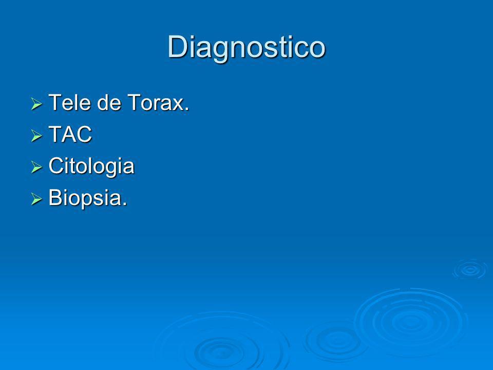 Diagnostico Tele de Torax. Tele de Torax. TAC TAC Citologia Citologia Biopsia. Biopsia.