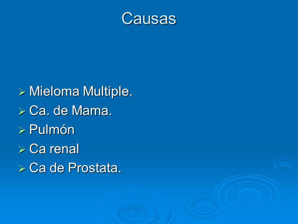 Causas Mieloma Multiple. Mieloma Multiple. Ca. de Mama. Ca. de Mama. Pulmón Pulmón Ca renal Ca renal Ca de Prostata. Ca de Prostata.