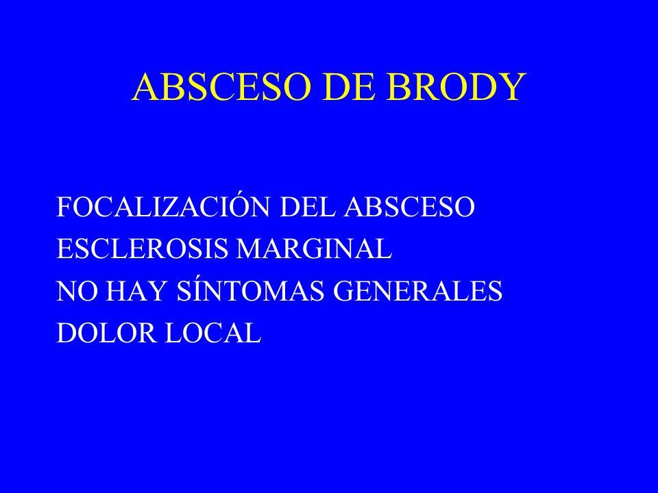 ABSCESO DE BRODY FOCALIZACIÓN DEL ABSCESO ESCLEROSIS MARGINAL NO HAY SÍNTOMAS GENERALES DOLOR LOCAL