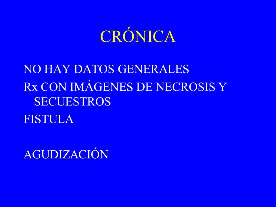 CRÓNICA NO HAY DATOS GENERALES Rx CON IMÁGENES DE NECROSIS Y SECUESTROS FISTULA AGUDIZACIÓN
