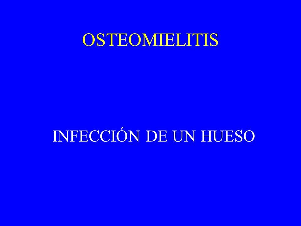 OSTEOMIELITIS INFECCIÓN DE UN HUESO