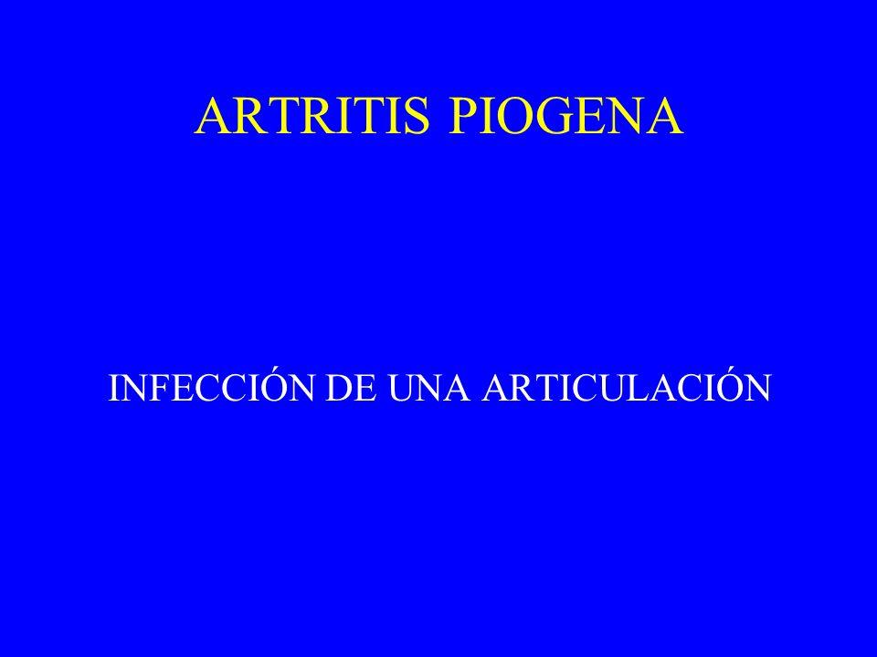 ARTRITIS PIOGENA INFECCIÓN DE UNA ARTICULACIÓN