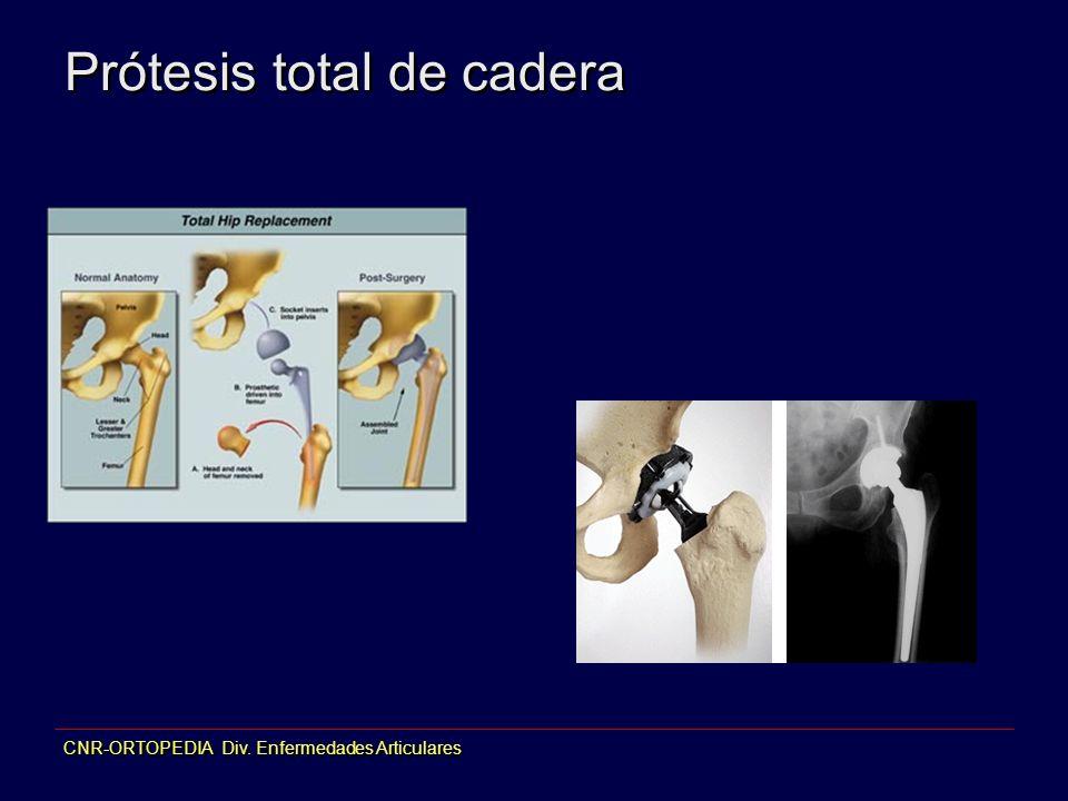CNR-ORTOPEDIA Div. Enfermedades Articulares Prótesis total de cadera