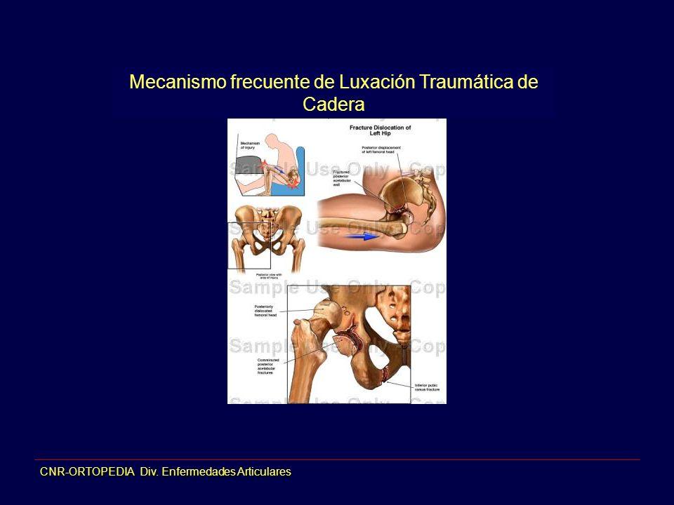 CNR-ORTOPEDIA Div. Enfermedades Articulares Mecanismo frecuente de Luxación Traumática de Cadera
