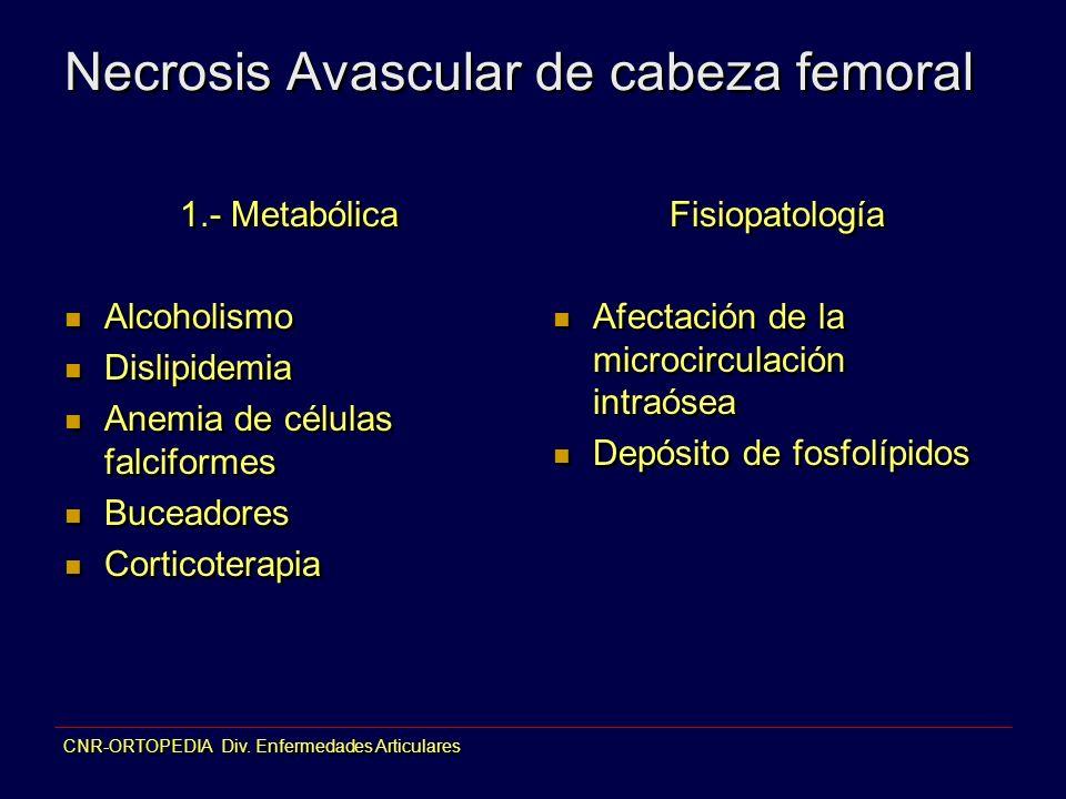 CNR-ORTOPEDIA Div. Enfermedades Articulares Necrosis Avascular de cabeza femoral 1.- Metabólica Alcoholismo Dislipidemia Anemia de células falciformes