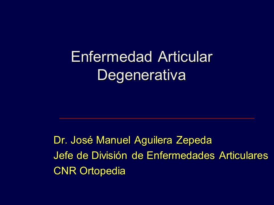 Enfermedad Articular Degenerativa Dr. José Manuel Aguilera Zepeda Jefe de División de Enfermedades Articulares CNR Ortopedia Dr. José Manuel Aguilera