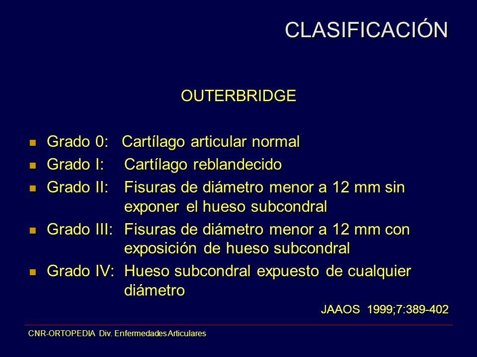 CNR-ORTOPEDIA Div. Enfermedades Articulares OUTERBRIDGE Grado 0: Cartílago articular normal Grado I:Cartílago reblandecido Grado II:Fisuras de diámetr
