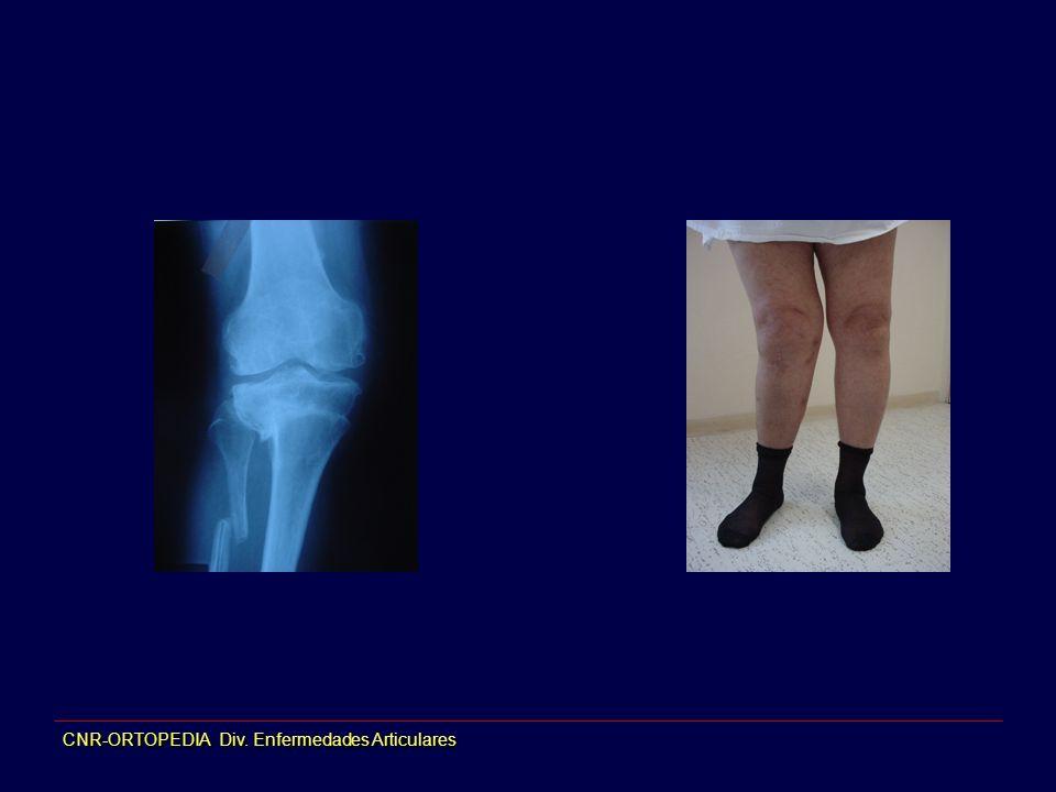 CNR-ORTOPEDIA Div. Enfermedades Articulares