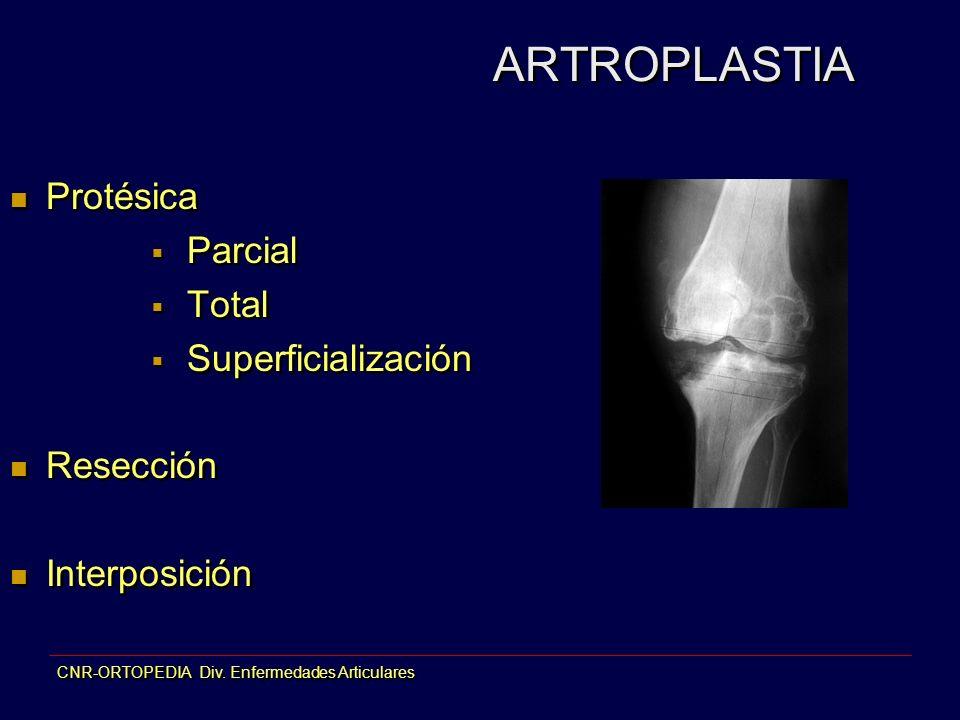 CNR-ORTOPEDIA Div. Enfermedades Articulares ARTROPLASTIA Protésica Parcial Total Superficialización Resección Interposición