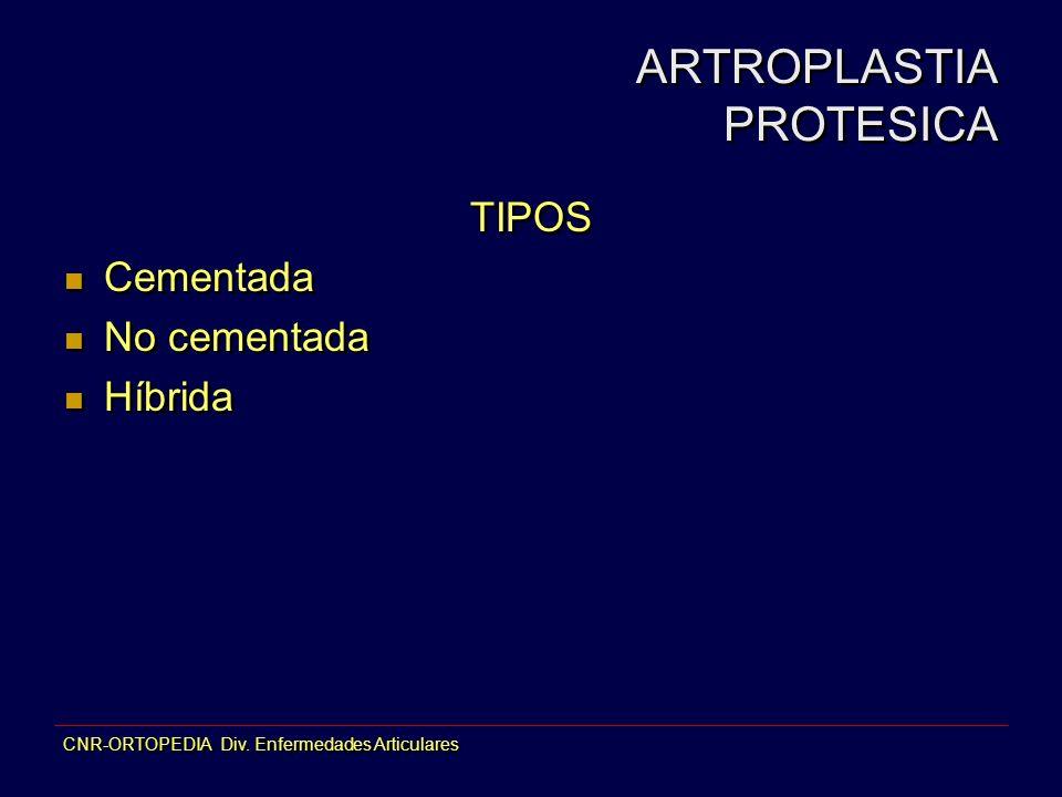 ARTROPLASTIA PROTESICA TIPOS Cementada No cementada Híbrida TIPOS Cementada No cementada Híbrida