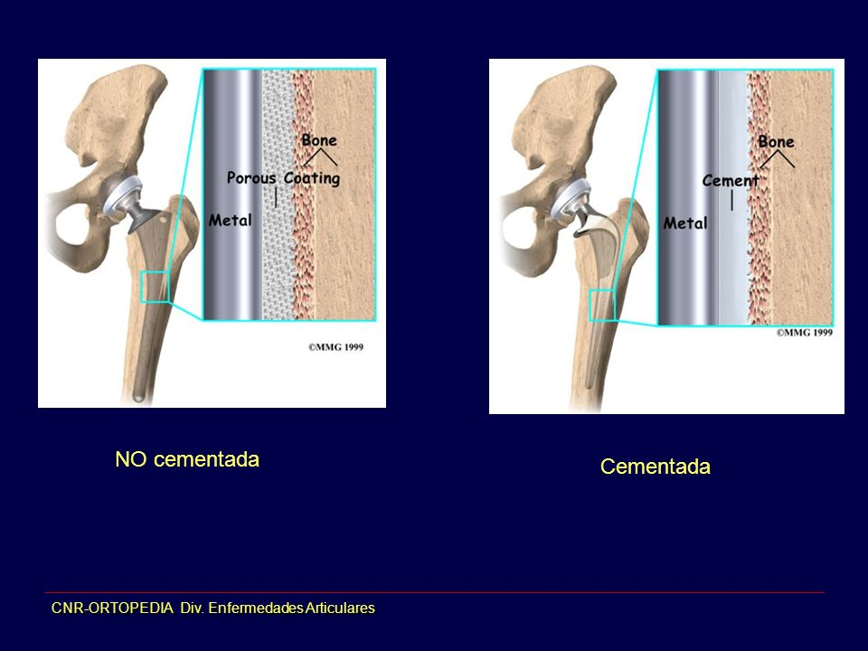 CNR-ORTOPEDIA Div. Enfermedades Articulares NO cementada Cementada