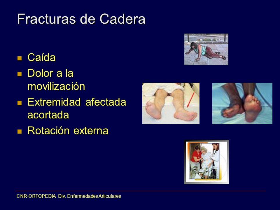 CNR-ORTOPEDIA Div. Enfermedades Articulares Fracturas de Cadera Caída Dolor a la movilización Extremidad afectada acortada Rotación externa Caída Dolo