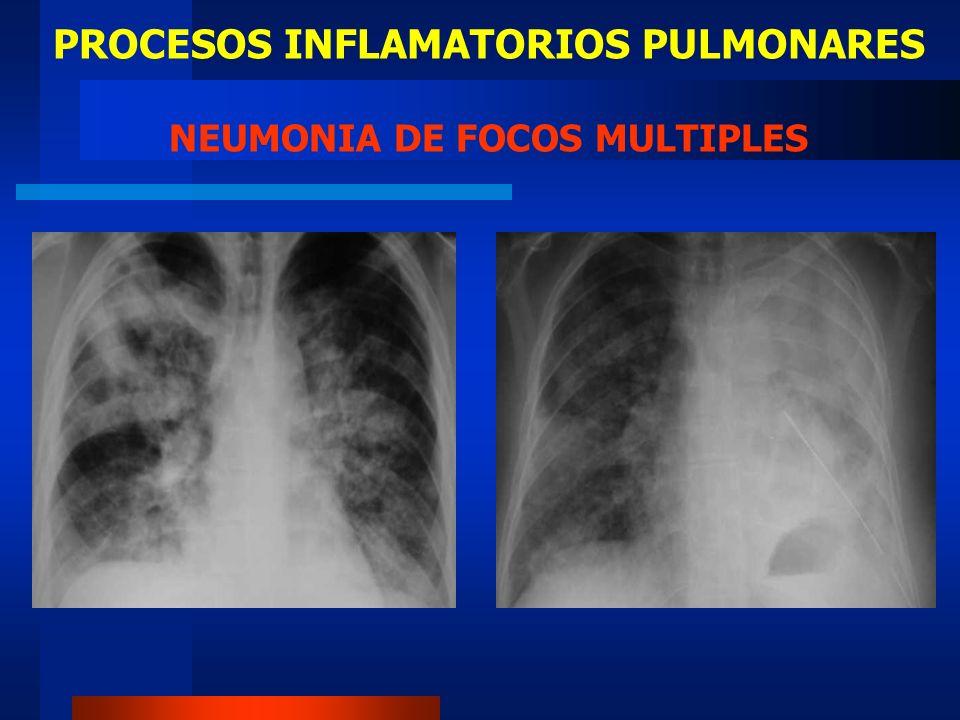 PROCESOS INFLAMATORIOS PULMONARES NEUMONIA DE FOCOS MULTIPLES
