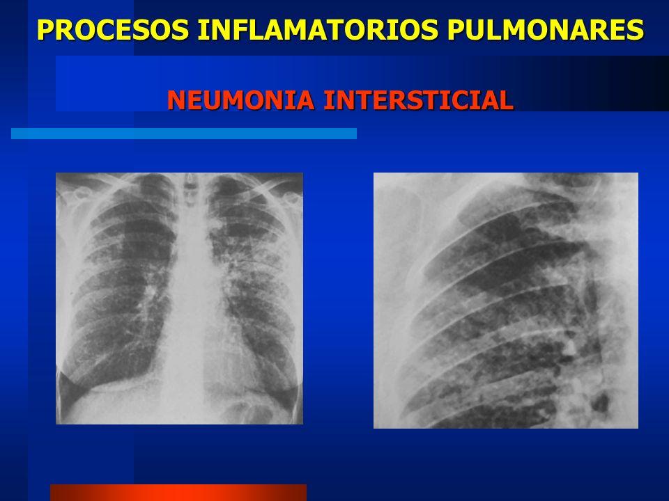 PROCESOS INFLAMATORIOS PULMONARES PATRON INTERSTICIAL DIAGNOSTICO DIFERENCIAL Neumocystis carini Neumonías virales Metástasis linfáticas Infiltrado por linfocitos Enfermedades granulomatosas Neumoconiosis
